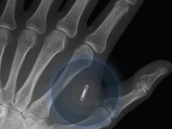 the-first-implantable-mobile-phone-will-become-commercially-available-in-2025-e1448621593994